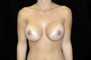 Breast Augmentation Thousand Oaks Patient 10