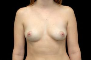 Breast Augmentation Thousand Oaks Patient 11