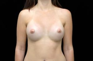Breast Augmentation Thousand Oaks Patient 13