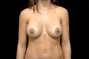 Breast Augmentation Thousand Oaks Patient 14
