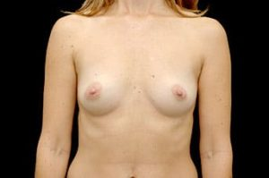 Breast Augmentation Thousand Oaks Patient 18