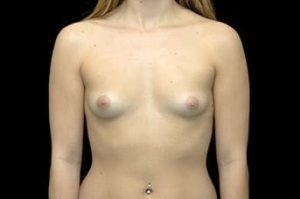 Breast Augmentation Thousand Oaks Patient 2
