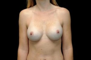 breast-augmentation-thousand-oaks-patient-20