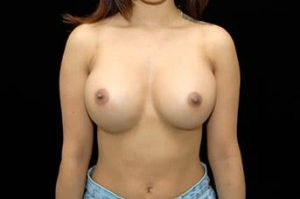 Breast Augmentation Thousand Oaks Patient 5