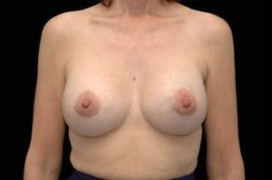 Breast Augmentation Thousand Oaks Patient 50