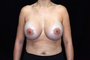 Breast Augmentation Thousand Oaks Patient 54