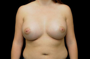 Breast Augmentation Thousand Oaks Patient 60