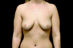 subglandular breast implants