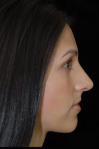 Nose Job Thousand Oaks Patient 11