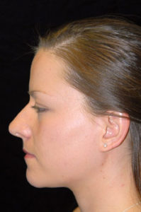 Nose Job Thousand Oaks Patient 14