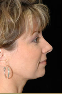 Rhinoplasty Thousand Oaks Patient 2