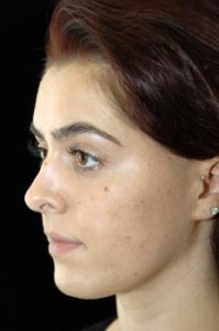 Rhinoplasty Thousand Oaks Patient 10