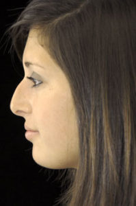Rhinoplasty Thousand Oaks Patient 6