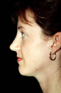 Rhinoplasty Thousand Oaks Patient 8
