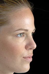 Rhinoplasty Thousand Oaks Patient 9