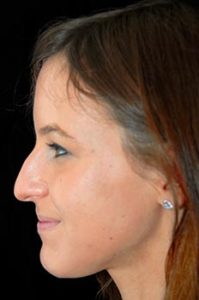 Rhinoplasty Thousand Oaks Patient 4