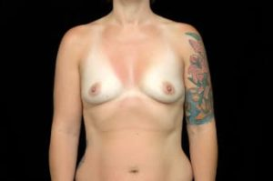 Breast Augmentation Thousand Oaks Patient 59