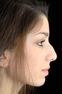 Rhinoplasty Thousand Oaks Patient 3