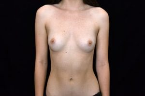 Breast Augmentation Thousand Oaks Patient 80