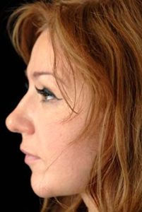 Nose Job Thousand Oaks Patient 13